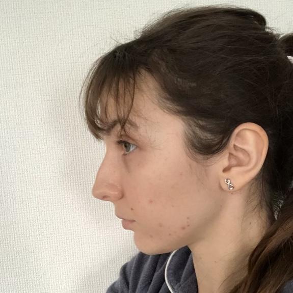 without-makeup